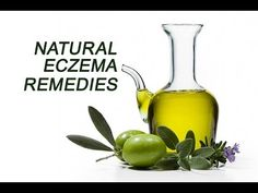 Natural Eczema Treatment - How To Get Rid Of Eczema Naturally - YouTube