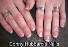 Flexinail fingernail care - What causes Vertical Fingernail Ridges