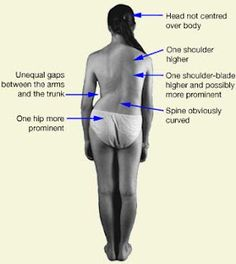 Scoliosis and TMJ... I have both plus the neck pain/headaches. Good site for stretches.