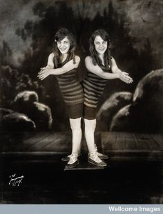 """These two ladies are Daisy and Violet Hilton back in their early Vaudeville days. Conjoined near the hip, they were highly successful stars but spent their early years abused and mistreated by a series of """"keepers"""". It was only when they were in their late teens were they legally able to represent themselves in business."""