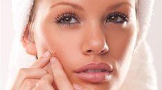 Acne - Medical Condition 1