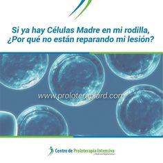 Si ya hay Células Madre en mi rodilla Por qué no están reparando mi lesión? #ProloterapiaRD #DolorCrónico #DrJuanCarlosVargas #MedicinaDelDolor - NUEVO ARTÍCULO EN NUESTRO WEB: http://ift.tt/2aLZUJ2
