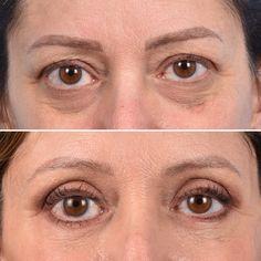 #eyelidsurgery #eyelids #blepharoplasty #plasticsurgeon #surgery Eyelid Surgery, Plastic Surgery, Eyebrows, Eyes, Eye Brows, Brows, Cat Eyes, Brow