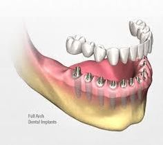 The days are gone when replacing the lost tooth was a big challenge before the dentist. However, with the options like dental implants, the idea of having permanent teeth over your jaw is possible.