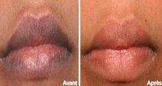 Avoir des lèvres sombres peut révéler une mauvaise santé, ou être simplement inesthétique selon le teint de la peau. Voici …