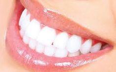 Berbagi Tips dan Trik Kesehatan: 6 Cara Alami Memutihkan Gigi