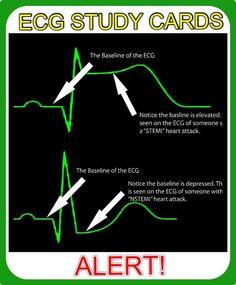 Use PQ to discover ST depression- trickier than STEMI's. Nursing School Tips, Nursing Tips, Nursing Notes, Ekg Interpretation, Study Cards, Cardiac Nursing, Emergency Medicine, Medical Field, Medical Information