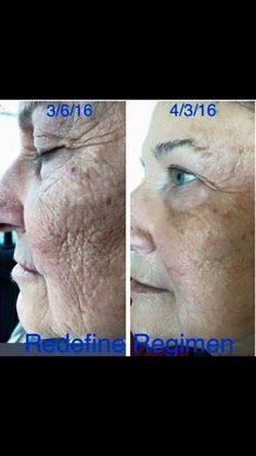 Rodan and Fields Redefine. #skincare at its finest