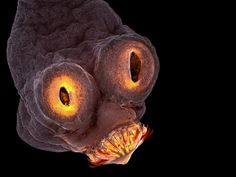 The 4th place winner shows the everted scolex (head) of a Taenia solium (tapeworm), magnified 200x.