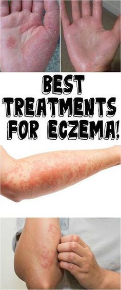 Homeopathy For Psoriasis Treatment Refferal: 3649919713 - Eczema Treatment Eczema Remedies, Skin Care Remedies, Health Remedies, Natural Remedies, Natural Treatments, Skin Treatments, Beauty, Places