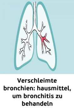 Verschleimte Bronchien: Hausmittel um Bronchitis zu behandeln #gesundheit #natürlicheheilmittel   #Bronchien  #behandeln Low Fever, Acute Bronchitis, Shortness Of Breath, Cough Medicine, Natural Health, Vitamins And Minerals, Healing, Home Remedies, Medicine