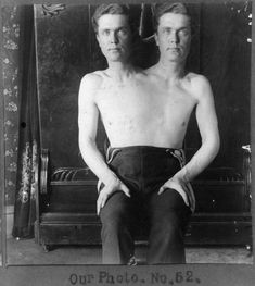 Conjoined twins bonded at the torso