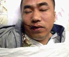 Husband and wife brutally beaten by Chinese officials enforcing the one child policy