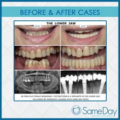 Making our patients our priority and helping them #smile with renewed confidence; that's what we strive to bring through our unique #technique.   #SameDayDentalImplants #dentalimplants #UAE #Dubai #oralhealth