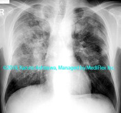 11. その他の肺疾患 症例099:多発血管炎性肉芽腫症 胸部単純X線写真 Radiology