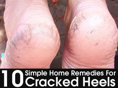 10 Simple Home Remedies For Cracked Heels - They look ugly and can be very painful. These are good, natural remedies. 10 Simple Home Remedies For Cracked Heels - They look ugly and can be very painful. These are good, natural remedies. Health Remedies, Herbal Remedies, Foot Remedies, Holistic Remedies, Cracked Heel Remedies, Skin Care Routine For 20s, Health And Beauty Tips, Health Tips, Health Benefits
