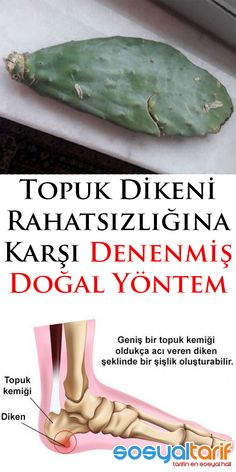 #topukdikeni #sağlık #bakım Health Advice, Health And Wellness, Health Care, Health Fitness, Herbal Remedies, Natural Remedies, New Inventions, Aspirin, Diet And Nutrition
