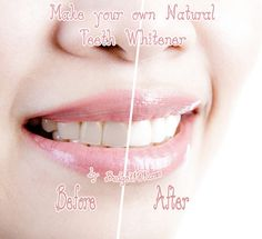 Make your own Natural Teeth Whitener (Click on photo for recipe)