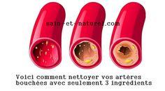 Voici comment nettoyer vos artères bouchées avec seulement 3 ingrédients Si vos…