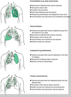 signs of lung disease on physical examination
