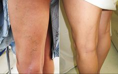 Natural Remedies Varicose Veins Garlic Prevents Inflammation, a Cause of Varicose Veins - How to Make Garlic Oil Varicose Veins Causes, Varicose Vein Remedy, Get Rid Of Spider Veins, Stars D'hollywood, Arnica Montana, Leg Pain, Life Problems, Sleep Apnea, Herbal Medicine