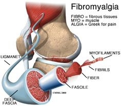 Fibromyalgia pictorial representation of the root word meaning and the internal structures.