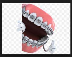 Brackets are attached to the teeth using special glue that bonds them the surface of your teeth and holds them in place. Mountain View High School, Braces Tips, Dental Braces, Orthodontics, Tooth, Surface, Meet, Teeth