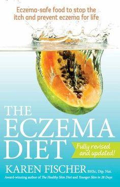 The Eczema Diet eBook by Fischer - 9781775591801 | Rakuten Kobo United States #CelluliteWrap Eczema Causes, Severe Eczema, Eczema Symptoms, Psoriasis On Face, Anti Itch Cream, Psoriasis Remedies, Cellulite Cream