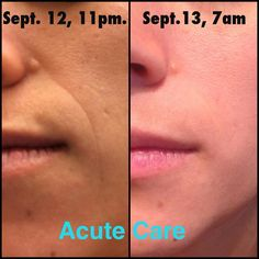 Before and After: Rodan + Fields Dermatology Acute Care. Literally erase wrinkles overnight! Fine lines, wrinkles, age backwards!