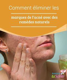 Comment #éliminer les marques de l'acné avec des remèdes naturels Après avoir #effectué un #traitement pour enlever les boutons de la #peau, il est probable que le visage reste tâché ou #marqué.