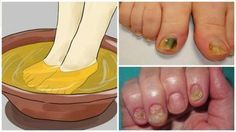 Watch This Video Mind Blowing Home Remedies for Toenail Fungus that Really Work Ideas. Astonishing Home Remedies for Toenail Fungus that Really Work Ideas. Snoring Remedies, Home Remedies, Natural Remedies, Toenail Fungus Remedies, Toenail Fungus Treatment, Toe Fungus, Toe Nails, Fungi, Healthy Tips