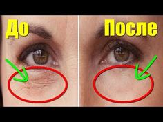 Beauty Advice, Beauty Hacks, Face Care, Skin Care, Lashes, Health Fitness, Eyes, Beautiful, Remedies