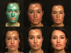 This image shows the progression of an Obagi Blue Peel from Day 1 through Day 10.