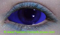 Blue Sclera Lenses