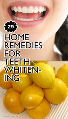 29 Home for Teeth Whitening full dental restora . - 29 Home for Teeth Whitening fulldentalrestora … - Diy Spa, Diy Beauty Care, Homemade Beauty Recipes, Home Remedies, Health Remedies, Natural Beauty Remedies, Alternative Treatments, Living At Home, Health And Beauty Tips