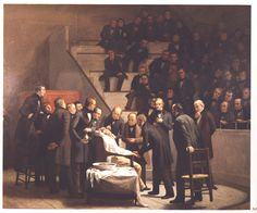 The first public demonstration of surgical anesthesia, at the Massachusetts General Hospital, October 16, 1846. Various anesthetics, from alcohol to opium, were used through history, but it was not until 1846 that a successful operation was demonstrated to the public and an account published. Administering ether gas through the patient's mouth, was American dentist William T.G. Morton.(1819-1868). Some observers left the theater in disgust, believing the demonstration to be a sham.