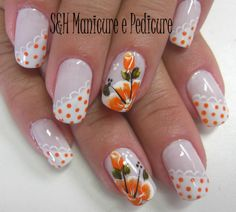 I don't know about orange flowers, but I can appreciate the detail! Spring Nails, Summer Nails, Gel Nagel Design, Diy Nail Designs, Stamping Nail Art, French Tip Nails, Flower Nails, Creative Nails, Nail Arts