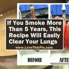 Remedies Natural Learn how to make this recipe to help detox your body and clear out your lungs. - Learn how to make this recipe to help detox your body and clear out your lungs. Lung Detox, Liver Detox, Cleanse Detox, Body Cleanse, Natural Detox, Natural Health, Clean Lungs, Quit Smoking Tips, Anti Smoking
