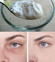 Astuce N°5: le bicarbonate de soude est aussi efficace pour éliminer les poches. Mélangez une cuillère à café de bicarbonate à de l'eau ou du thé, trempez un coton dans la mixture et posez sur vos yeux pendant 10 minutes.