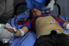 PHOTO: Palestinian child wounded by #Israel in besieged Gaza Strip 21 February 2014. #News #WorldNews