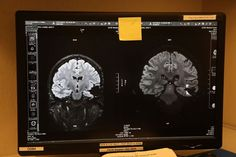 San Francisco researchers may have found a new treatment for glioblastoma, an aggressive and deadly brain cancer. Photo: Liz Hafalia, The Ch...