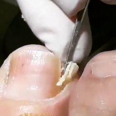 Remove ingrown nail using the manicure kit for nail treatment #ingrowntoenail removal😷😷 follow