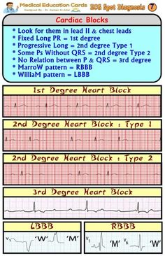 ECG: heart blocks