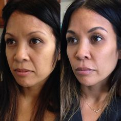 Dermal fillers for nasolabial folds and cheek enhancement. Juvederm, Voluma, Restylane and Lyft and perfect products for smoothing out deeper facial folds and restoring volume loss in the midface. Treatment by Gina Jones at Body Tonic, in Austin.