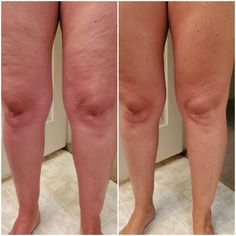 Sculpting Gel helps tighten loose and saggy skin and reduce wrinkles. Apply 2 times per day everyday consistently for 30 days. Repairs dermal structure of the skin. Smooths and tightens! Not a workout gel. Detox To Lose Weight, Sculpting Gel, Tighten Loose Skin, Back Acne Treatment, Reduce Cellulite, Les Rides, Acne Skin, Skin Care, Instagram