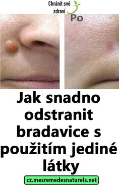 Jak snadno odstranit bradavice s použitím jediné látky One Shoulder Dress Long, Dress Hairstyles, Natural Medicine, Diabetes, Kuroko, Beauty Makeup, Health Care, Health Fitness, Medicine