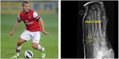 Arsenal's #JackWilshere is currently sidelined with a foot fracture. The midfielder sustained the fracture in #England's friendly vs. Denmark, but is expected to return for #WorldCup2014 play. #soccerinjuries www.insideinjuries.com