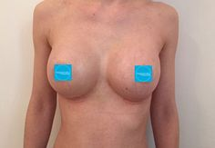 Boob jobs Plastic Surgery, Fitspo, Boobs, Breast, Medical, Women's Fashion, Tattoos, Fitness, Christmas