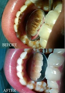 How to Get Rid of Yellow Teeth * Brush your teeth with baking soda. * Rinse your mouth with a vinegar/water solution.