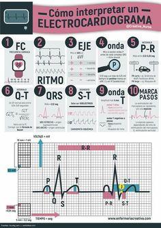 ¿Cómo interpretar un electrocardigrama? Clique aqui http://www.estrategiadigital.pt/e-book-gratuito-ferramentas-para-websites/ e faça agora mesmo Download do nosso E-Book Gratuito sobre FERRAMENTAS PARA WEBSITES